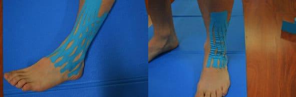 Taping bei verstauchtem Knöchel,Schwellung an Fuß und Knöchel