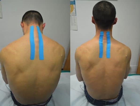 Taping bei Nackenschmerzen