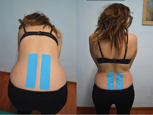 Taping bei Rückenschmerzen, Bandscheibenvorfall,Kontrakur des quadratischen,Lendenmuskels