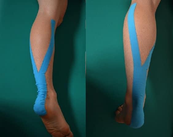 Taping bei Kontraktur der Wade und Achillessehnenentzündung