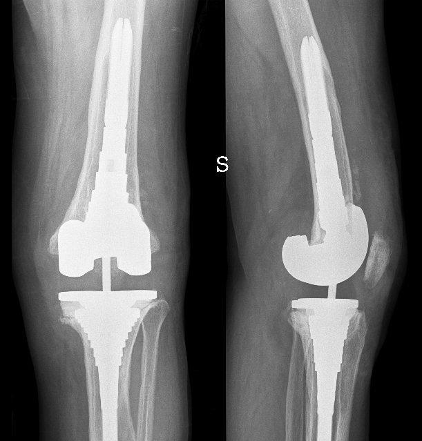 Prothese, künstliches Kniegelenk, Arthrose, total, Knie, Schmerz, Gelenk, Entzündung, Schmerzen, Physiotherapie, Rehabilitation