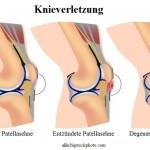 Sehnenentzündung im Knie,Patellasehne