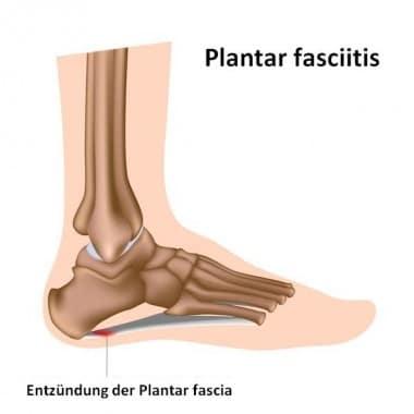 Fasciitis, plantar Schmerzen, Entzündungen, Punkt, Ort, falsche