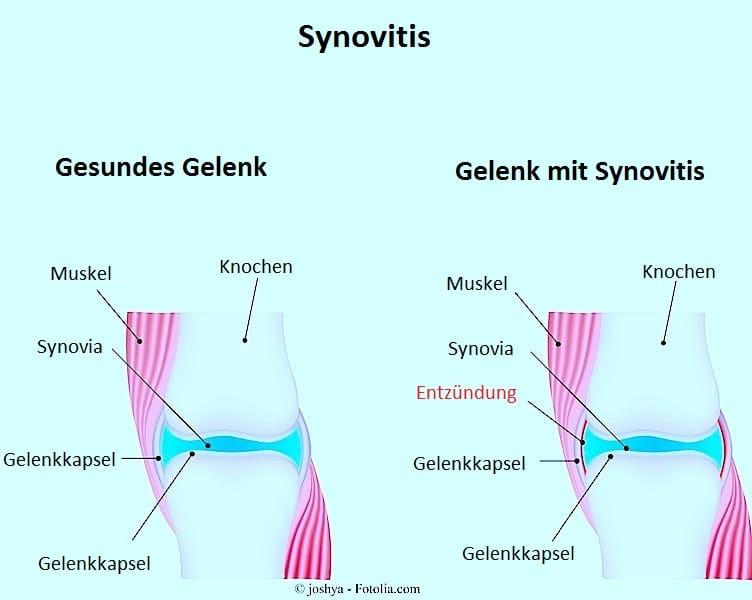 Synovialitis im Knie