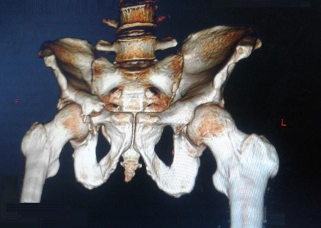 Azetabulumfraktur, CT (3D)