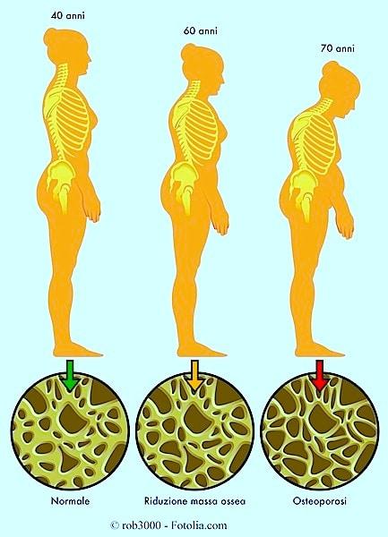 Wirbel, Lenden, Osteoporose, Knochenschwund, Fraktur, Bruch, Läsion, Verletzung, Kalzium, Calcium, Sonne, Vitamin, D, Einbruch, ältere Menschen, Knochendichtemessung, DXA
