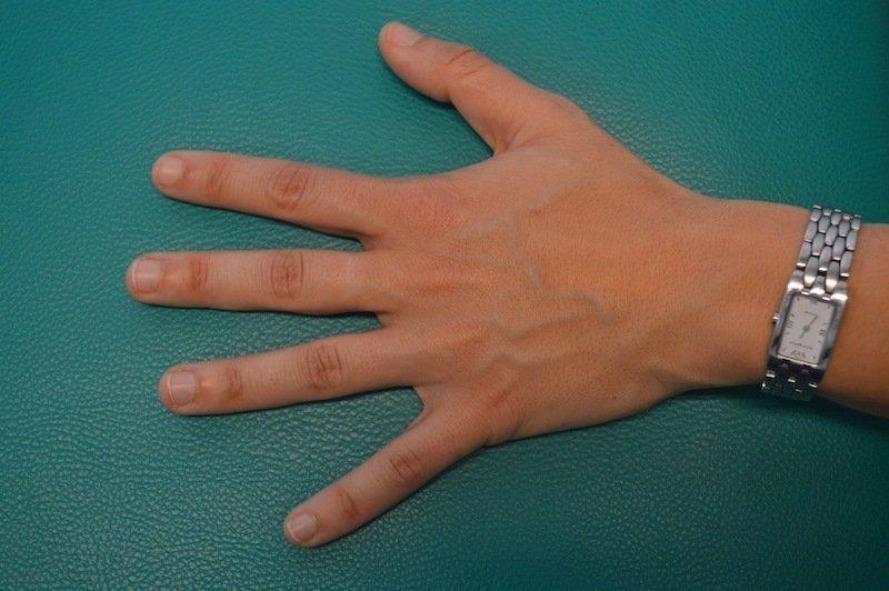 Wie den Nagelzwang im Salon zu behandeln