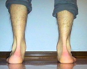 Schmerzen im kn chel au en belasten schwellung supination for Douleur interieur pied