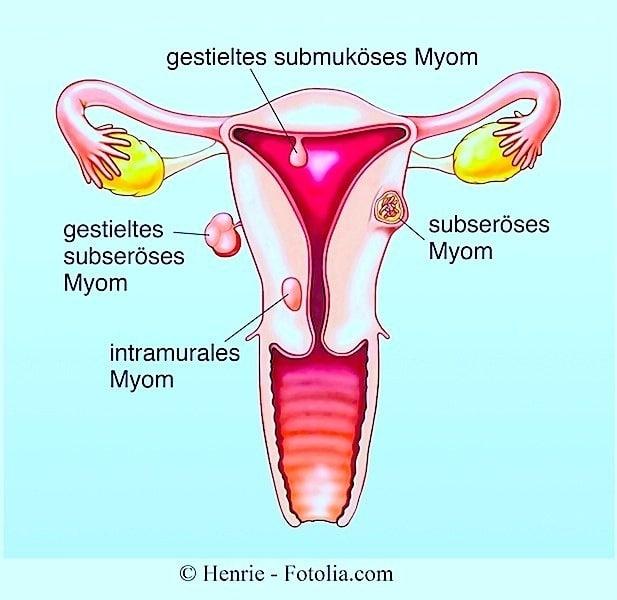 Gebärmutter Tastbar