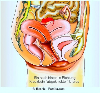 Weibliche Geschlechtsorgane, seitlich,Rückwärtsneigung der Gebärmutter