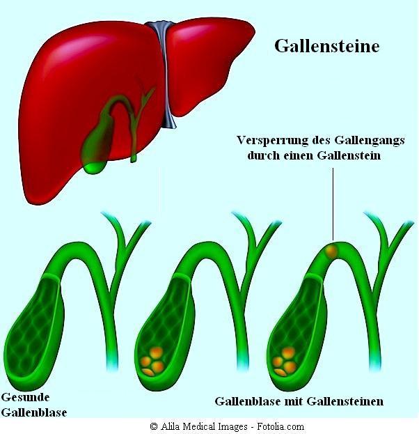 Gallensteine,Gallenblase,Schmerzen,rechte Flankenschmerzen