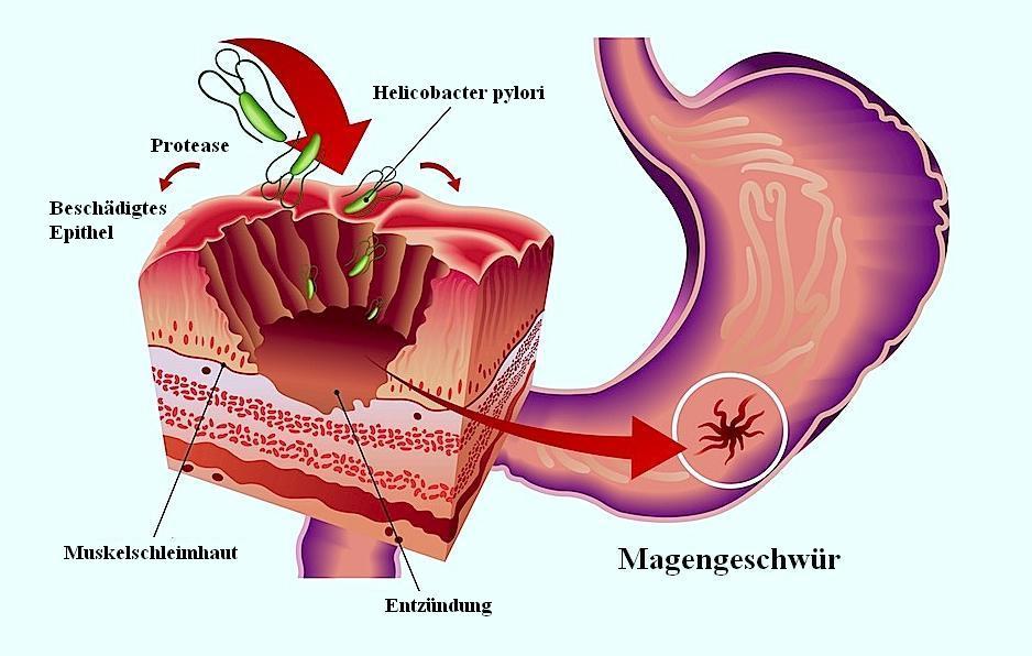 Magengeschwür,Zwölffingerdarmgeschwür,Helicobacter pylori,Magenentzündung