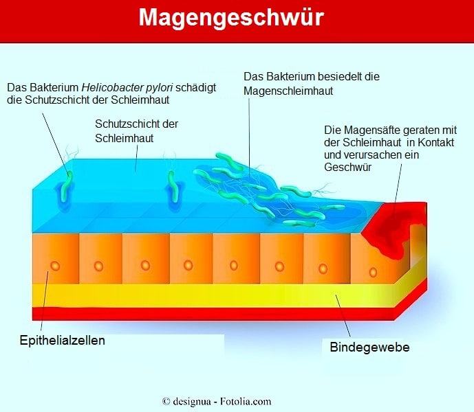 Magengeschwür,Helicobacter pylori