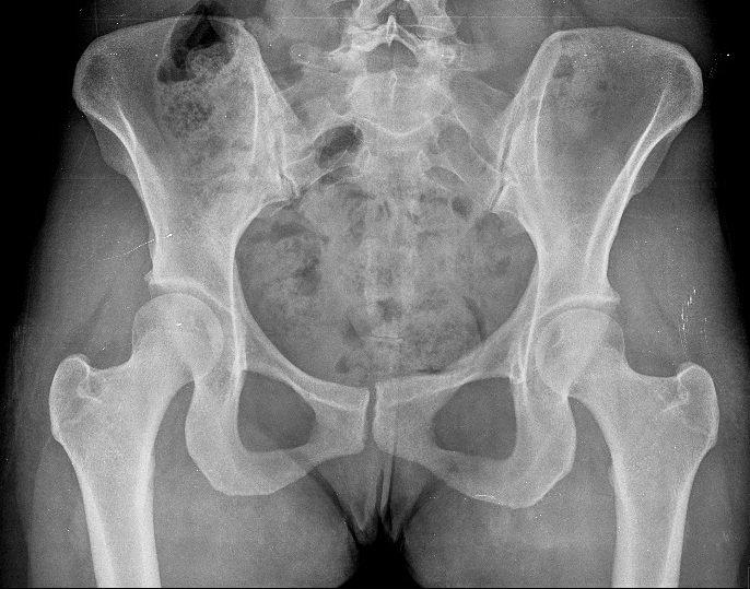 Becken,Röntgenbild,Kolposkopie,Schmerzen,Untersuchung,gynäkologische,Pap-Test