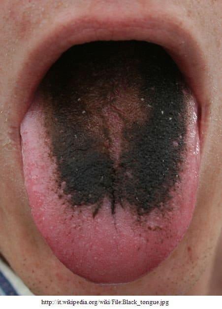 Schwarze Haarzunge,Lingua villosa nigra