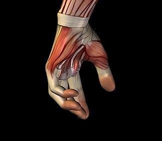 Handschmerzen