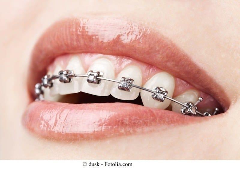 Feste Zahnspange,Zähne