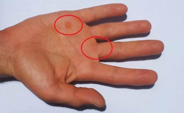 Hornschwielen,Hände