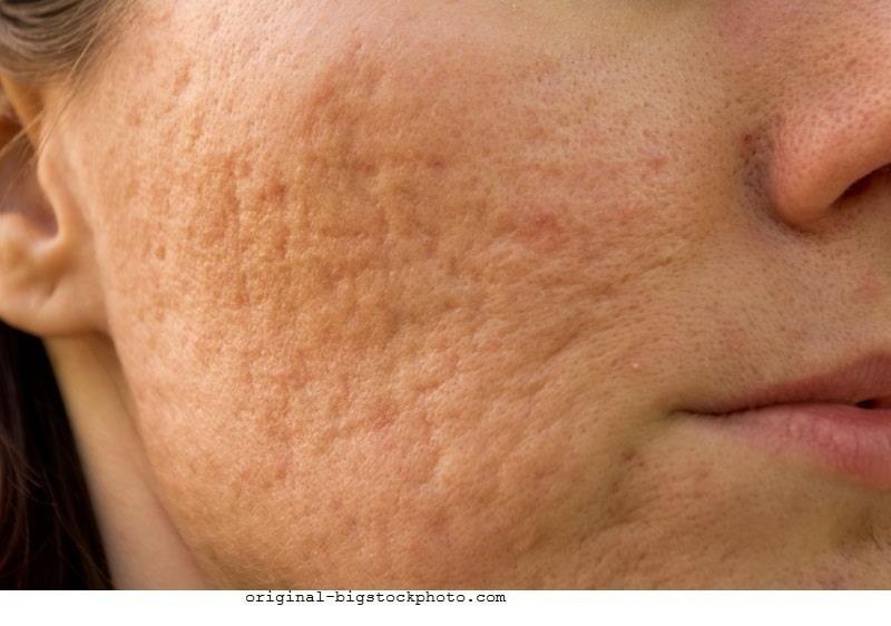 Aknenarben,Pflege,Schönheitsfehler