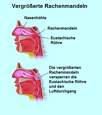 Anatomie,Lunge,NaseRachenmandeln,Foto,Bilder