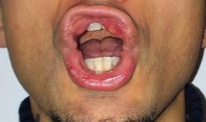 Aphthen im Mund,Aphthe,Zunge,Lippe