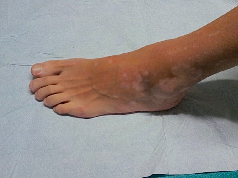 Vitiligo,Fuß,weiße Flecke,Haut