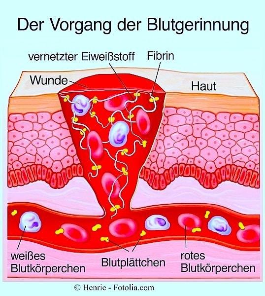 Blut,Blutgerinnung