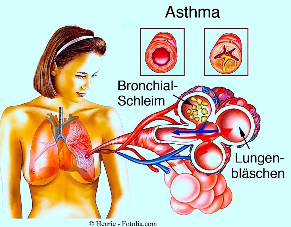 Asthma bronchiale,Lunge,Bronchien