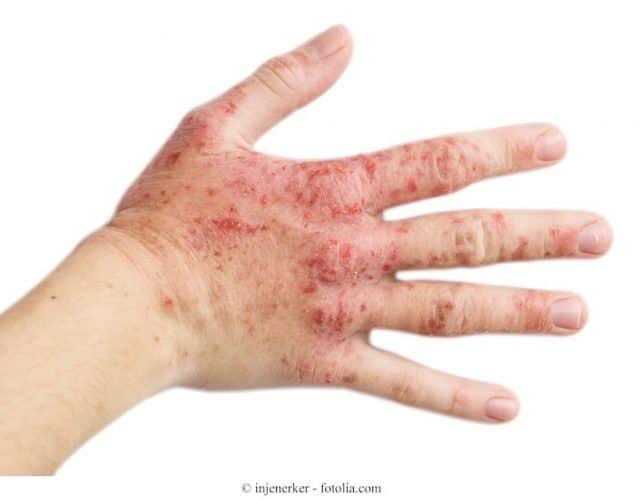 Kontaktdermatitis,Hand