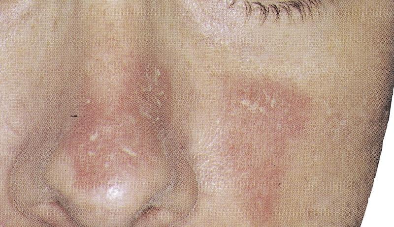 Seborrhoische Dermatitis