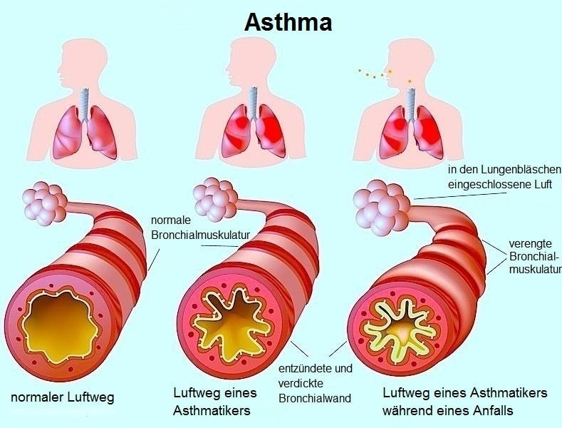 Asthma bronchiale,Bronchien