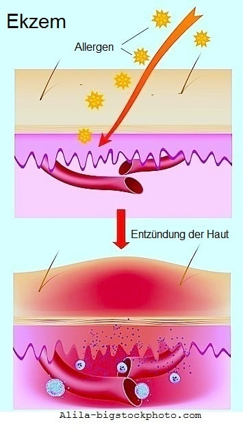 Kontaktdermatitis,Hautreaktion