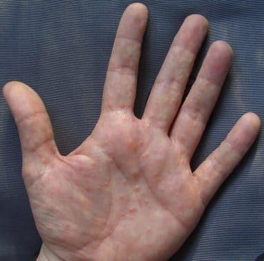 Dyshidrose an Händen,wikipedia