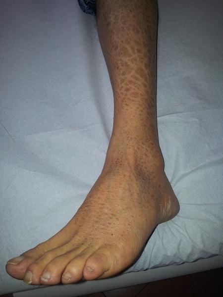 Ekzem,Bein,Knöchel,Dermatitis