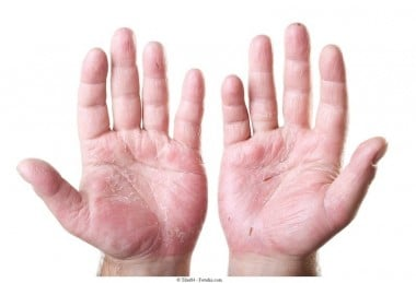 Hände,Dermatitis,Kontakt