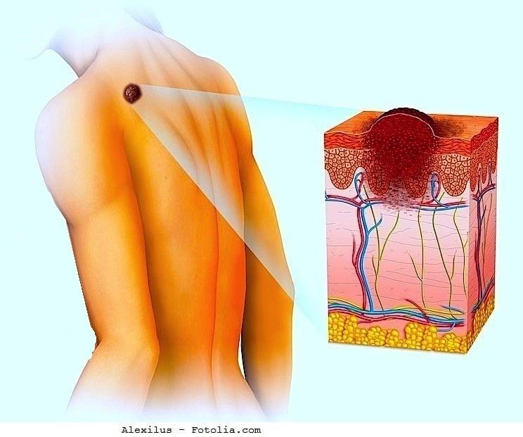 Melanom,Haut,Tumor,Aspekt,Symptome