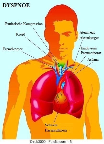 Dyspnoe, Atemnot,Lunge