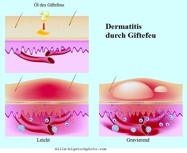 Juckreiz an den Beinen,allergische Reaktion,Urtikaria