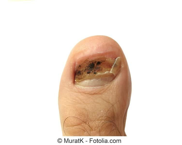 Kaká per guarire un fungo su unghie