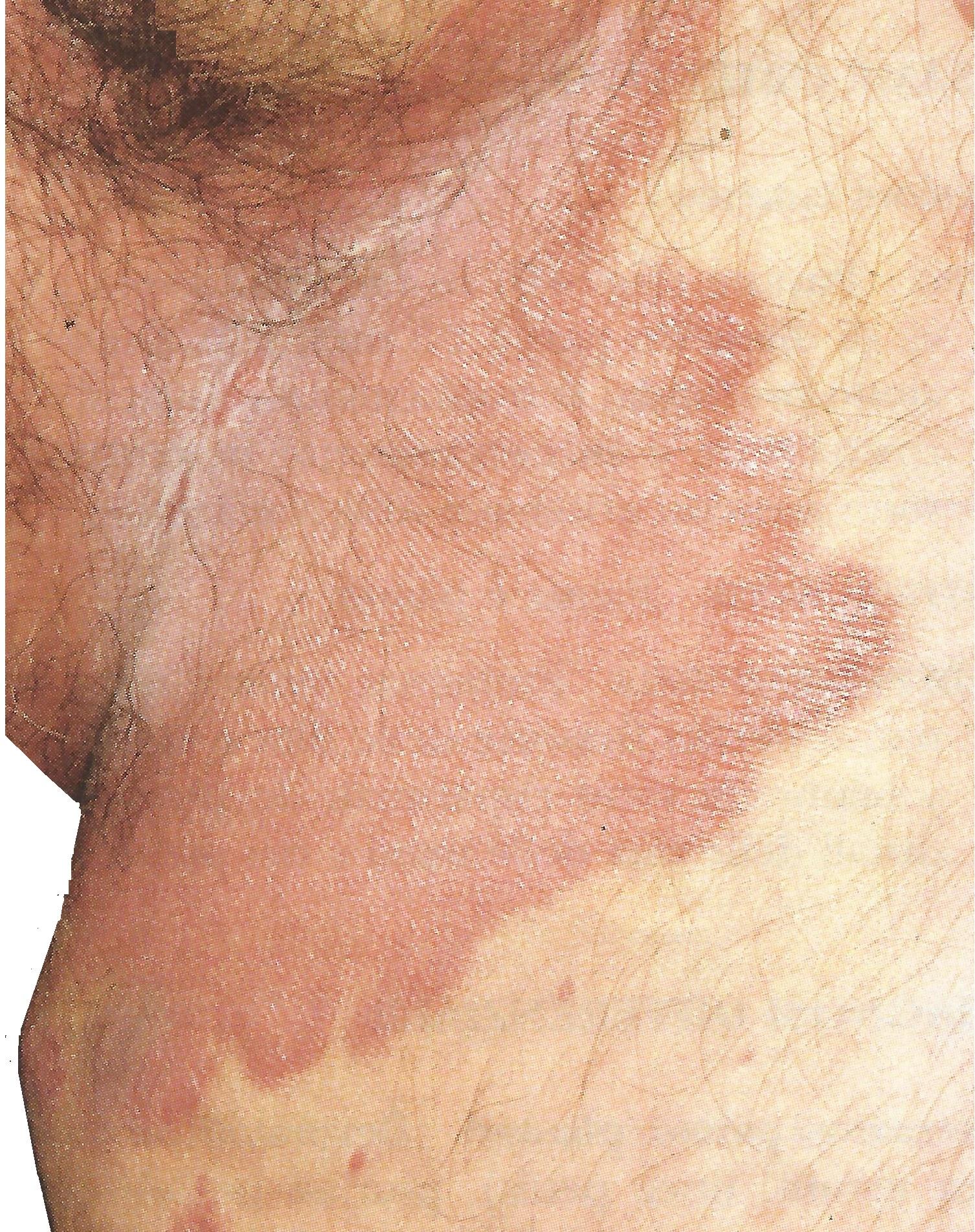 Psoriasis im Genitalbereich,Leisten