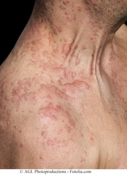 Allergische Reaktion,Dermatitis,Kontakt,Ekzem