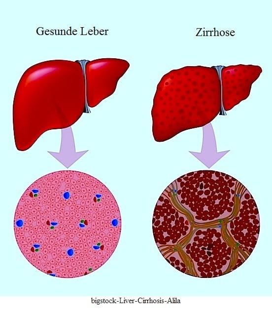 Aszites,Zirrhose,Flüssigkeitsansammlung,Abdomen,Bauch