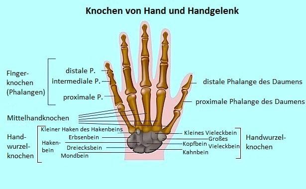 Folgen von Überlastung von Handgelenken und Sehnen