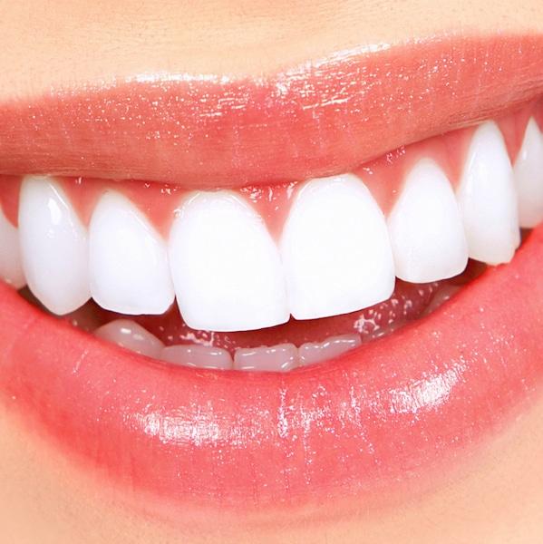 Zahnfleisch,Lippen,schöne,weiße Zähne