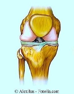 Geschwollenes Knie,Schwellung,Entzündung