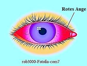 Rote Augen,rötlich,Konjunktivitis,Allergien,Infektionen