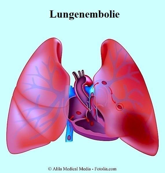Lungenembolie,Lungen,Bronchien