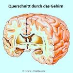 Gehirn,Ohnmacht