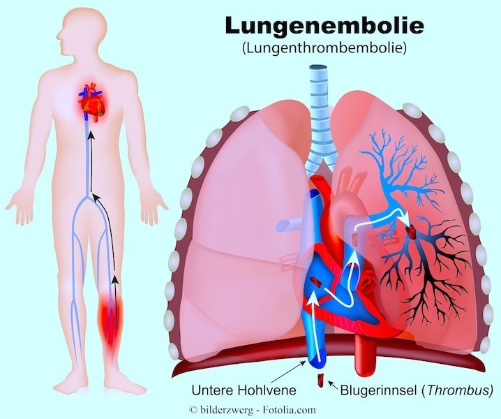 Lungenembolie,Blutgerinnsel