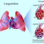 Lungenödem,Flüssigkeit,Entzündung